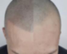 Haarpigmentierung Berlin vorher nachher