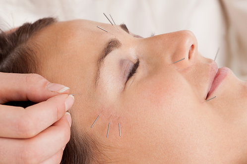 Facial Rejuvenation and Cosmetic Acupuncture (90min)