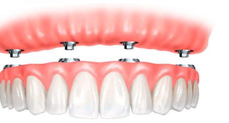 Conheça os Principais Tipos de Dentadura