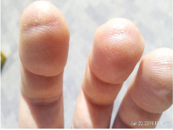 This shows what happens when students start lessons on the guitar and they get grooves from the strings on their fingertips.