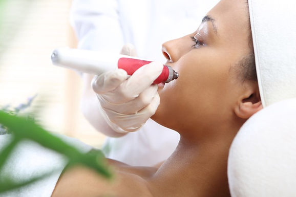 All About Microneedling, benefits of microneedling, dermapen microneedling, microneedling treatment, is dermapen microneedling safe