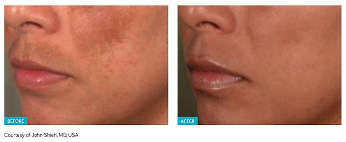 Skin resurfacing, Spectra Laser Peel, Hollywood Laser Peel, remove acne, remove acne scars, remove skin pigmentation, remove fine lines