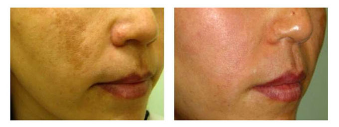 Skin rejuvenation peel, Spectra Laser Peel, Hollywood Laser Peel, get rid of acne, get rid of acne scars, get rid of pigmentation, get rid of fine lines, get rid of melasma