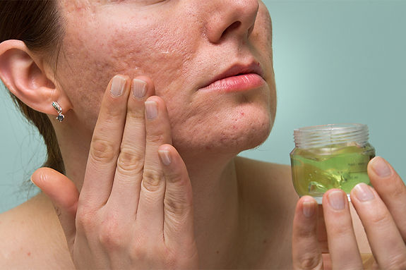 woman applying face cream, get rid of deep acne scars, remove acne scars, remove acne discoloration, pitted acne skin fix
