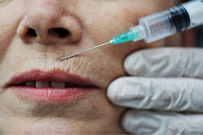 botox injection fillers lip wrinkles Botox Injections Corona aesthetics Corona aesthetician Skin rejuvenation