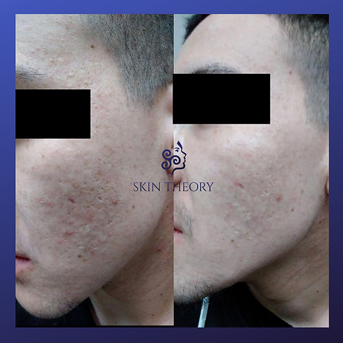 acne scarring treatment before and after images