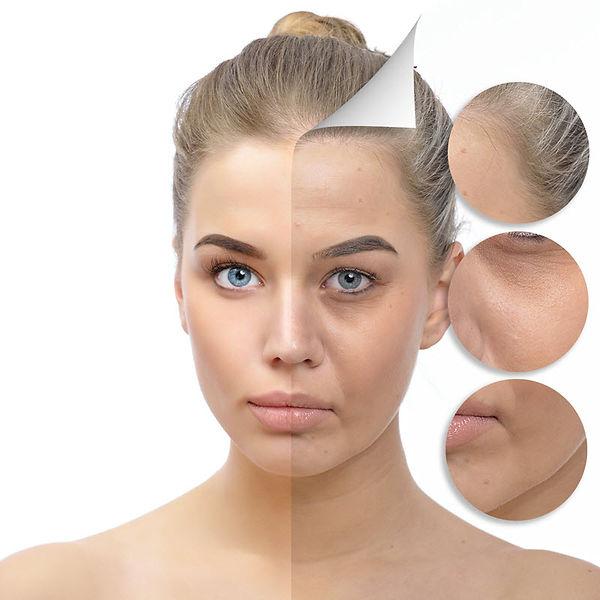 Volumizing fillers, dermal fillers, cosmetic fillers,Juvederm, Radiesse, soften wrinkles, plump lips, laugh lines