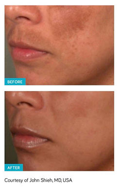 Melasma treatment, Spectra Laser Peel, skin resurfacing, gentle exfoliation, no downtime melasma treatment, melasma, remove age spots