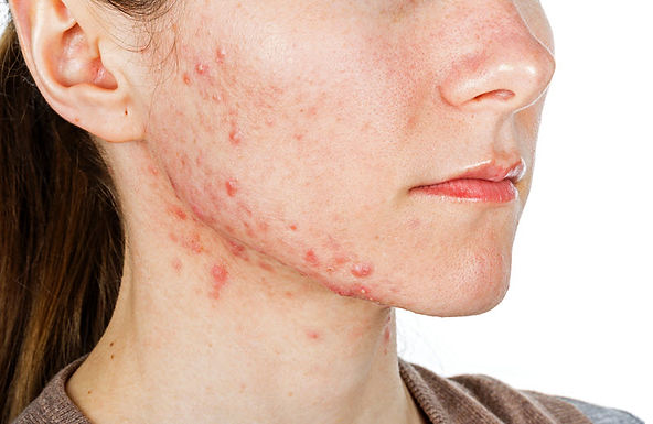 Treat active acne and acne scars, Spectra Laser Peel, Hollywood Laser Peel, get rid of acne, get rid of acne scars, skin resurfacing, exfoliation treatment