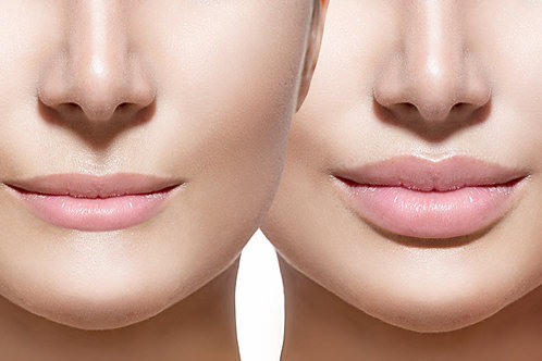 Lips and Lines Package