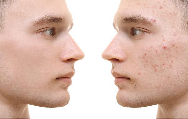 acne before and after treatment ONLINE ACNE TREATMENT CONSULT corona aesthetician