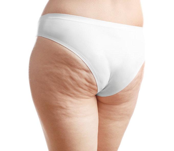 Fix my wrinkled butt, Radiesse Buttocks Lift, Radiesse Dermal filler lift, Radiesse Butt Lift