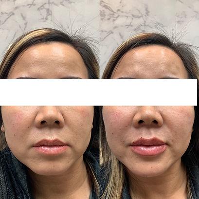 Lip-filler-before-and-after-jpg.JPEG