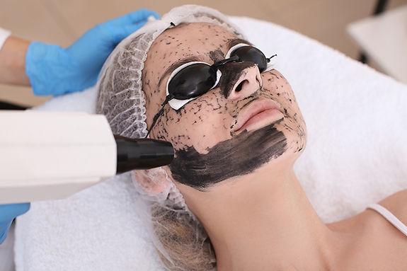 laser peel procedure, get rid of freckles and brown spots, remove freckles, remove age spots, remove liver spots, reduce melasma, reduce hyperpigmentation