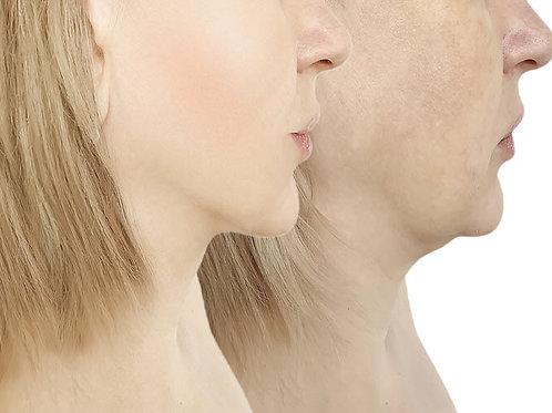 Botox And Chin Lift Ulthera Combo Package