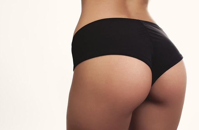 Radiesse butt lift, Radiesse dermal filler butt lift, non-surgical buttocks lift, dermal filler butt lift injections