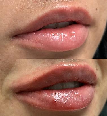 Lip-filler-1-versa-jpg.JPEG