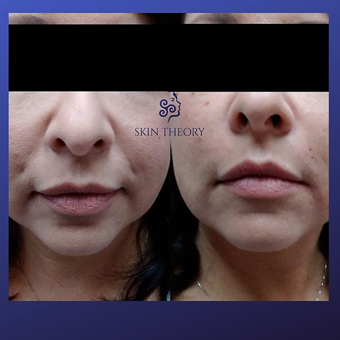 nasal fold treatment results before and after