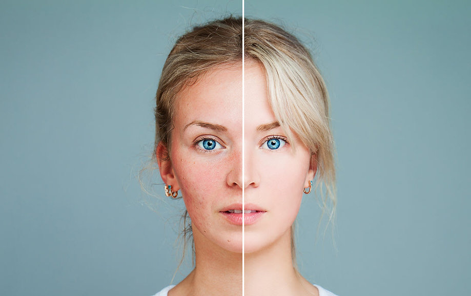 acne treatment corona aesthetician corona aesthetics skin rejuvenation