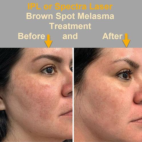 Treat Age Spots/Sun Damage/Melasma