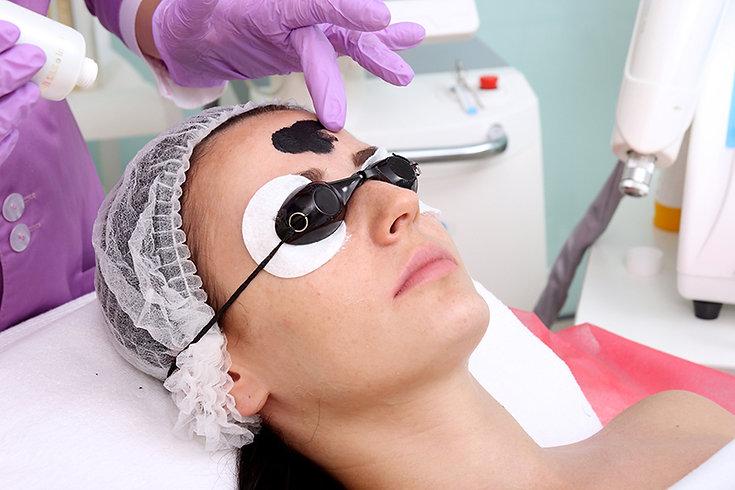 spectra laser treatment, Hollywood laser peel, how does spectra laser peel work, benefits of spectra laser peel, dark spot treatment, melasma treatment
