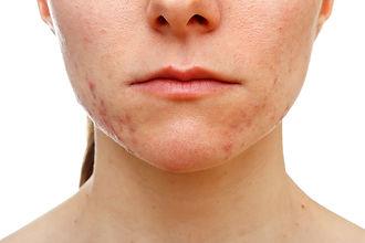 Common acne ONLINE ACNE TREATMENT CONSULT corona aesthetician