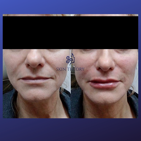 radiesse and restylane fillers before and after results