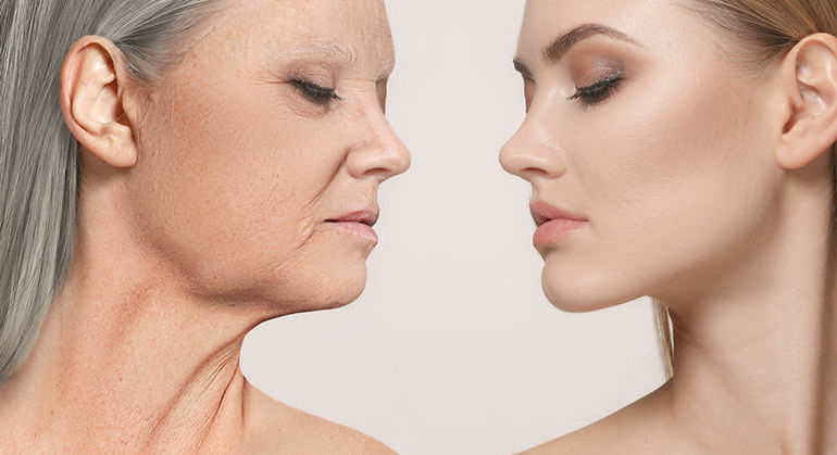 non-surgical facelift, liquid facelift, Theory-⛛-Lift, V-lift
