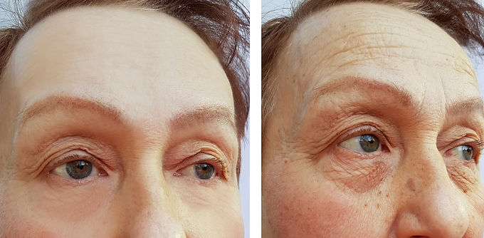 Get Rid of Forehead Wrinkles, Prevent forehead wrinkles, Botox, Remove Wrinkles, What to use for forehead wrinkles