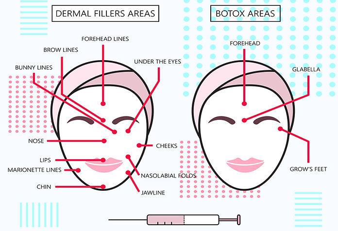 botox injection comparison chart Botox Injections Corona aesthetics Corona aesthetician Skin rejuvenation