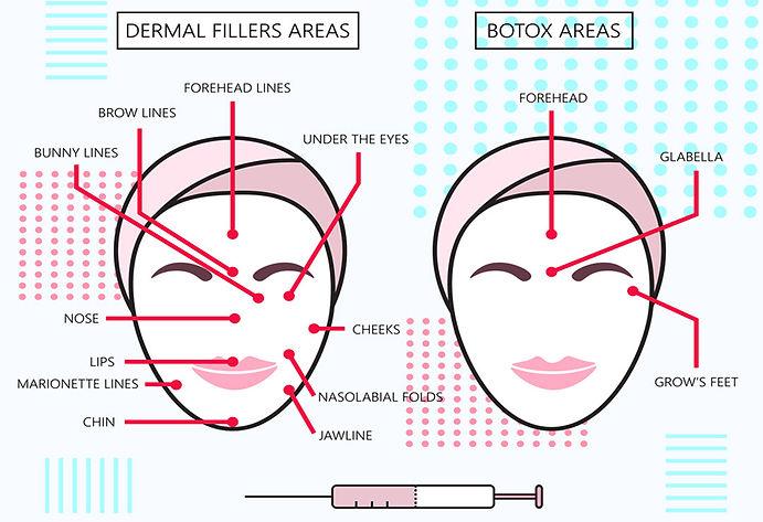 about botox comparison chart botox Corona aesthetics Corona aesthetician Skin rejuvenation