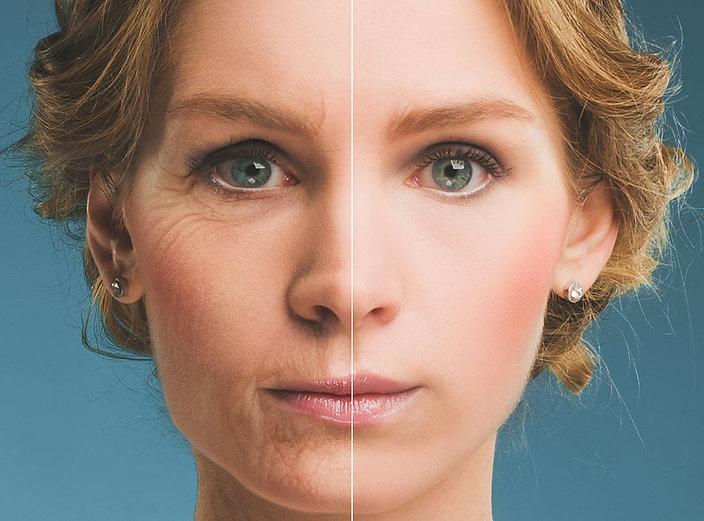 before and after Botox Cosmetic Treatment Corona aesthetics Corona aesthetician Skin rejuvenation