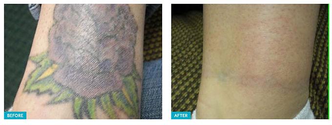 Spectra Laser Peel, skin rejuvenating treatment, Hollywood Laser Peel, get rid of acne, get rid of acne scars, get rid of skin pigmentation, get rid of fine lines, get rid of melasma, get rid of large pores