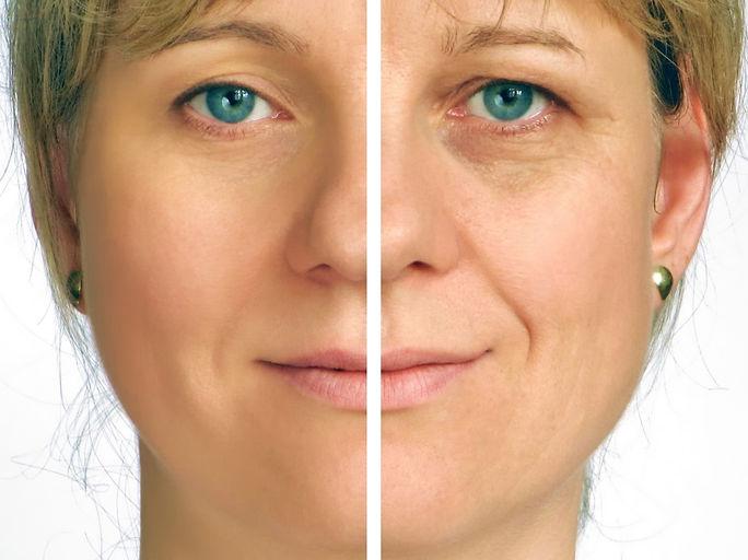 soften wrinkles correction of wrinkles Soften wrinkles Corona aesthetics Corona aesthetician Skin rejuvenation
