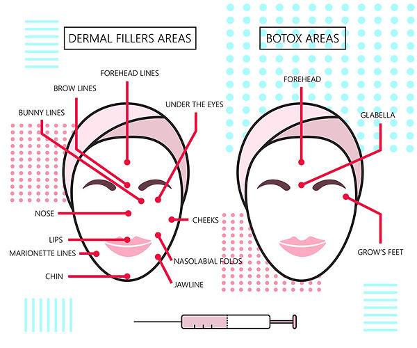 About Radiesse, Radiesse, cosmetic fillers, fillers, smooth wrinkles, calcium hydroxylapatite