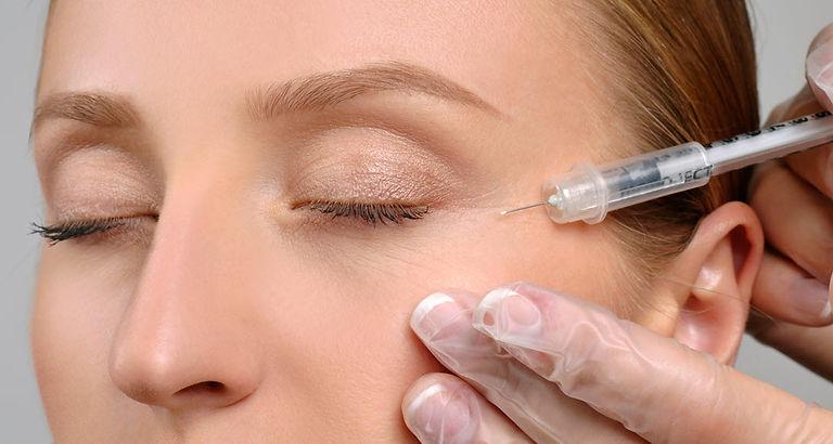 botox injection laugh line Botox Corona aesthetics Corona aesthetician Skin rejuvenation