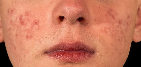 about acne symptoms About Acne Corona aesthetics Corona aesthetician Skin rejuvenation
