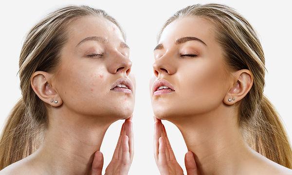 about acne treatments About Acne Corona aesthetics Corona aesthetician Skin rejuvenation