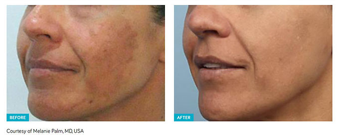 Best Spectra Laser Peel, skin resurfacing, Hollywood Laser Peel, remove freckles, remove fine lines, remove acne, remove acne scars