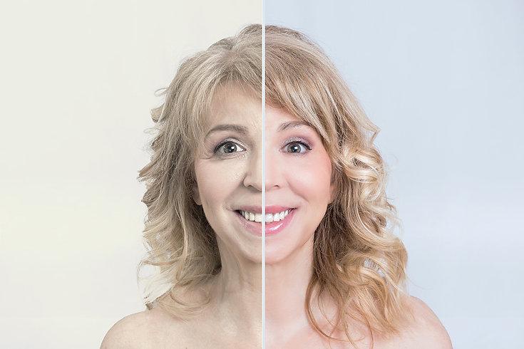 before and after Spring Skin Treatments Corona aesthetics Corona aesthetician Skin rejuvenation