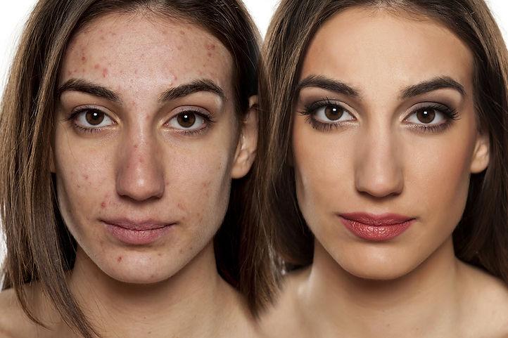 online acne treatment consult corona aesthetician corona aesthetics skin rejuvenation