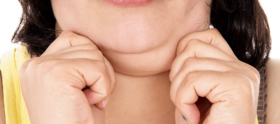 all about kybella, kybella for a double chin, kybella injection treatment, fix a double chin, double chin injection procedure, non-invasive double chin procedure, reduce your double chin.
