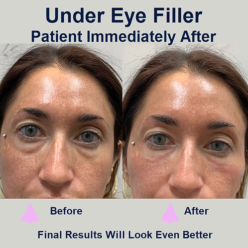 Theory Eye Rejuv™ Under Eye Filler Treatment