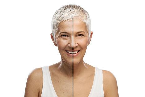 Skin rejuvenation Best skin aesthetics blog Corona aesthetics Corona aesthetician Skin rejuvenation