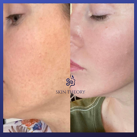 pigment correction chemical peel before and after images