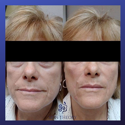 cheek volume before and after treatment with radiesse