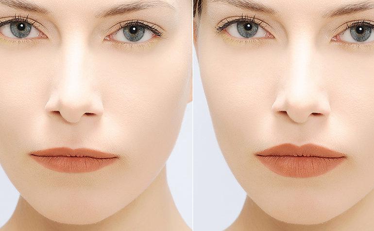 before and after lip fillers Corona aesthetics Corona aesthetician Skin rejuvenation