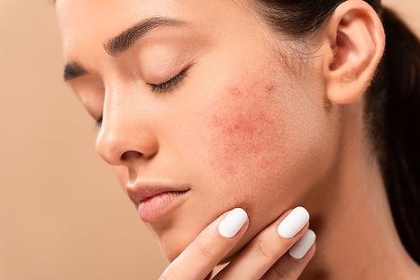get rid of deep acne scars, remove acne scars, remove acne discoloration, pitted acne skin fix