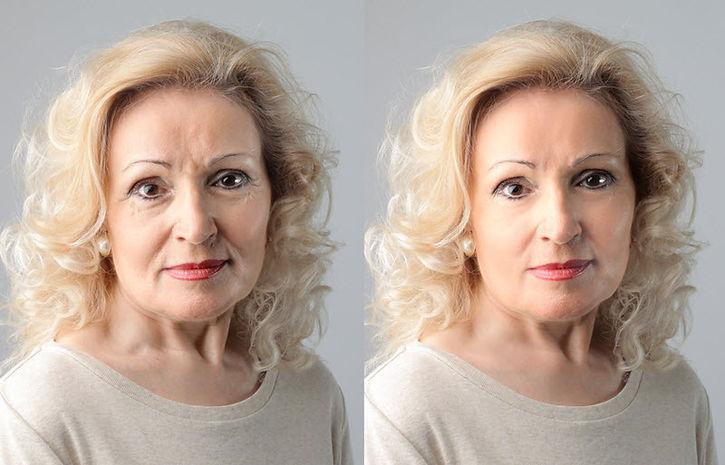 Hyaluronic Acid Fillers, HA fillers, dermal fillers,Juvederm, soften wrinkles, plump lips