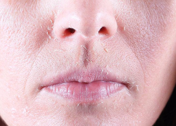 PCA chemical peel results PCA chemical peel how it works PCA Chemical Peel skin rejuvenation